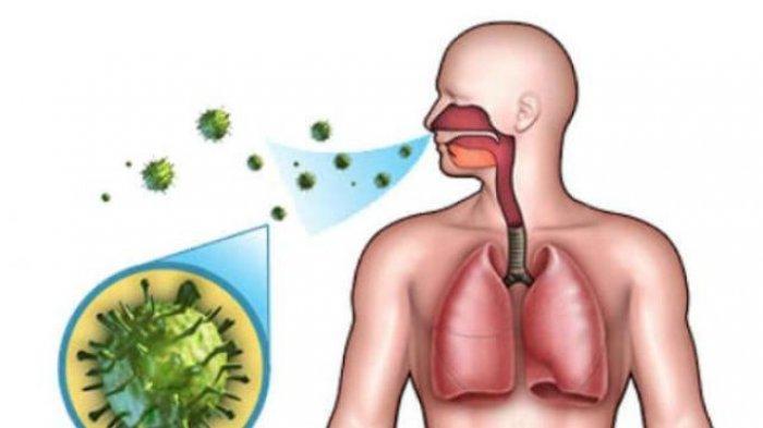 Kenali Jenis Flu Hingga Cara Pencegahannya