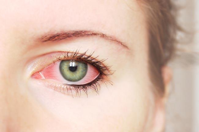 Penyebab Peradangan ( Konjungtivitis ) Pada Mata